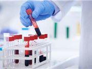 Olo 血液检测 成本高 快速